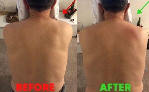 Client before after example 1
